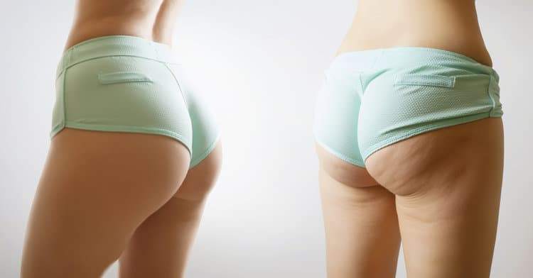 What Really Works To Pulverize Those Dimpled Thighs?