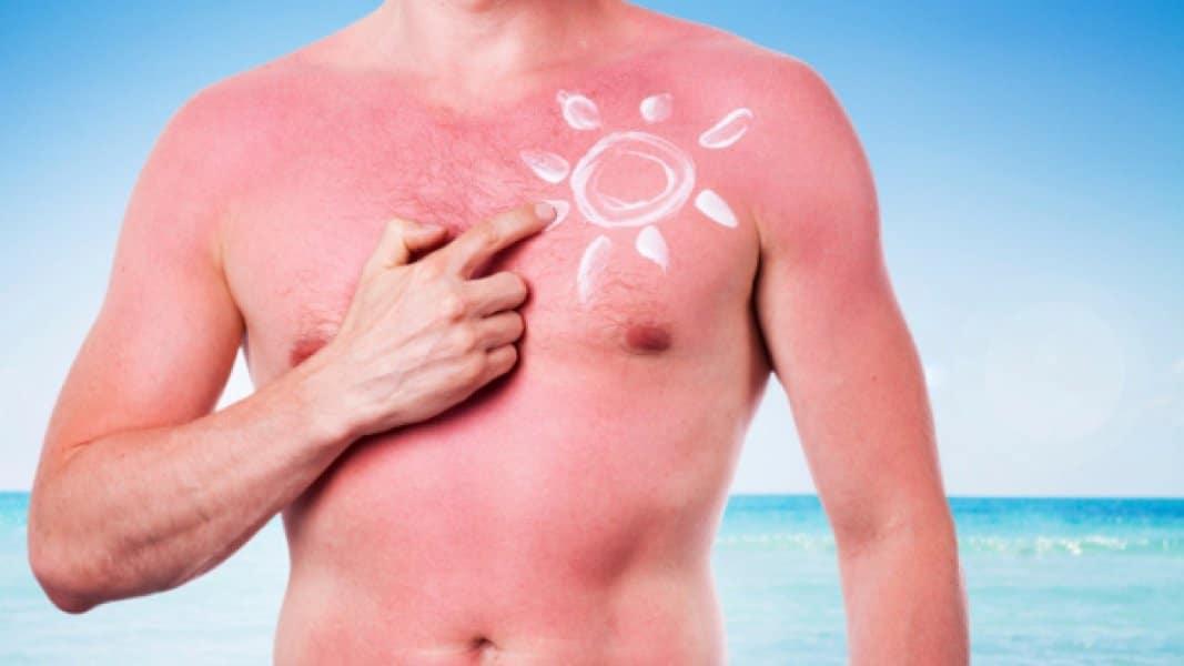 sunburn tattoo