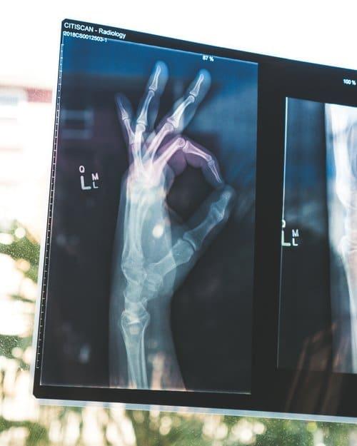 x rayhand