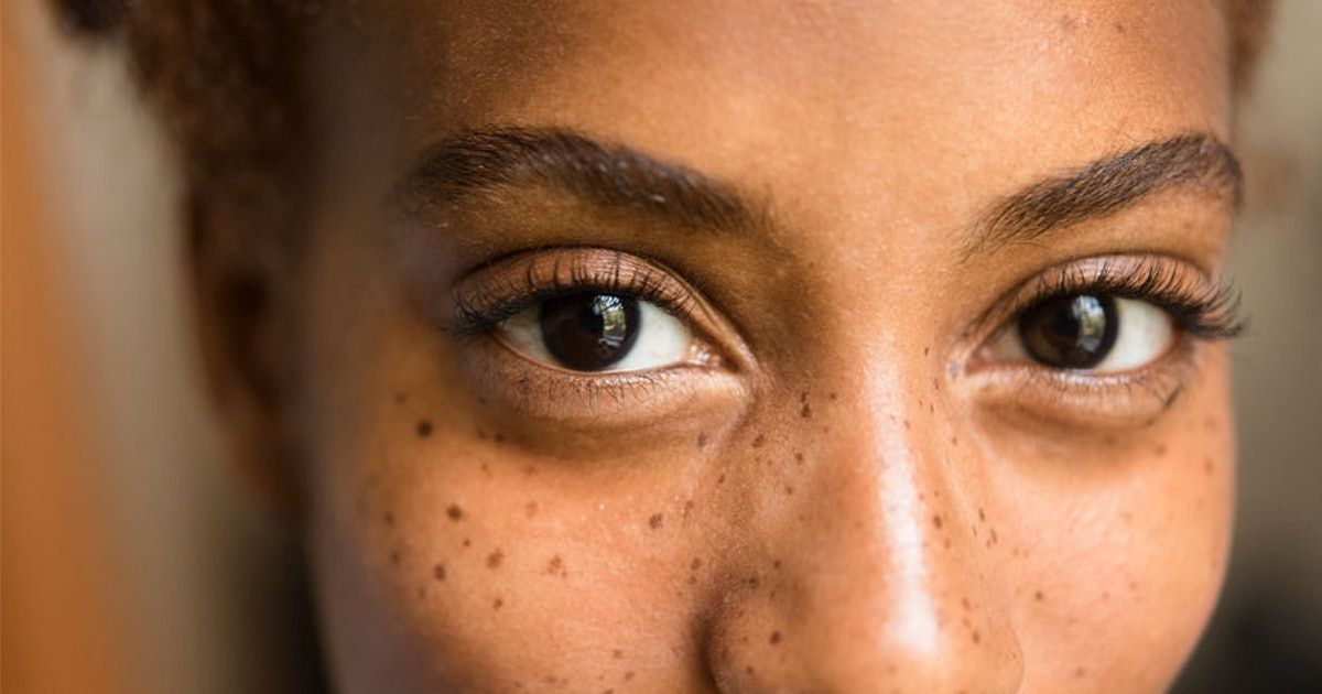 Why You're Suffering With Dry Irritated Eyes