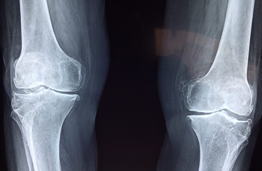 Biomaterial That Helps Bones Heal Faster