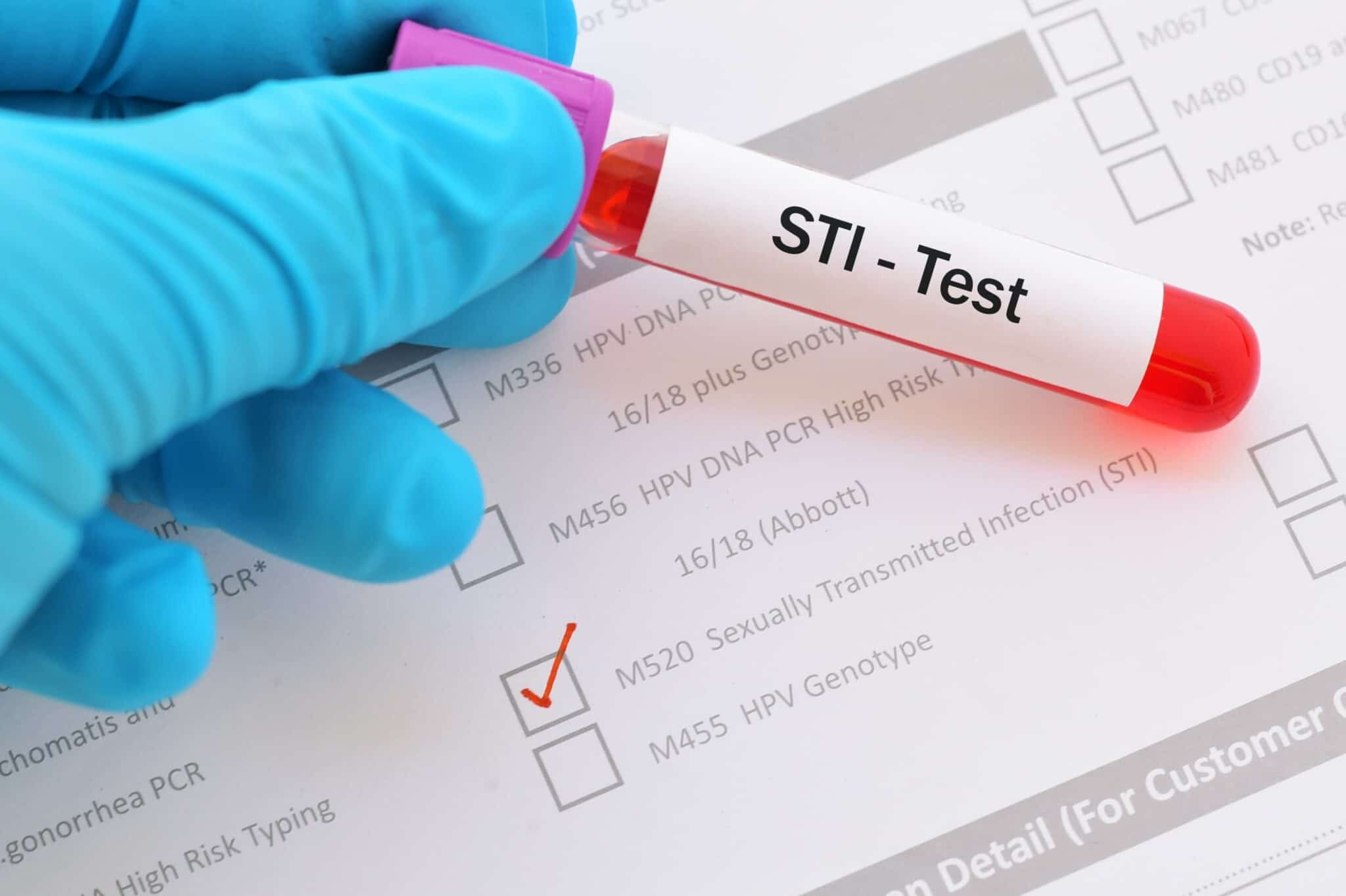 How Often Should You Actually Go For An STI Test?