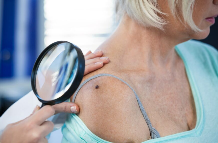 Skin Cancer Warning Signs You Need To Look Out For